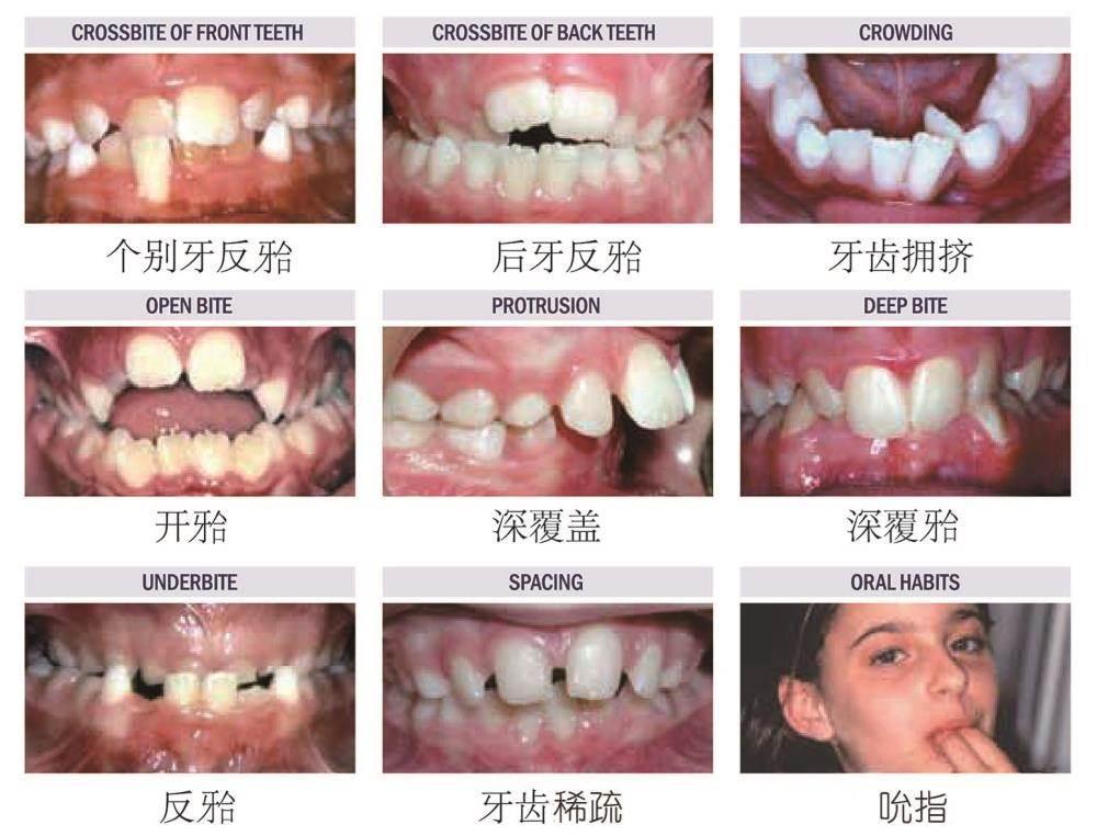 牙齿不齐等问题的6-11岁的儿童